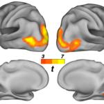 Photo avec 4 cerveaux vue de différents angles. Dans chacun d'entre eux une zone est représenté de nuance de couleur vive.